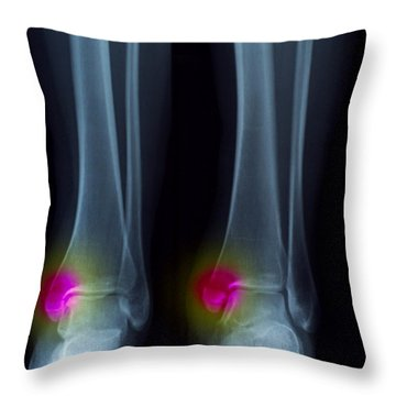Ankle Fracture Throw Pillow by Scott Camazine