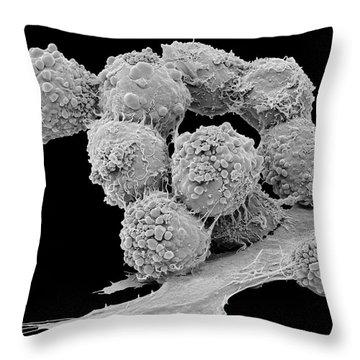 Brain Tumor Throw Pillows