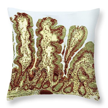 Giardiasis Light Micrograph Throw Pillow by Science Source
