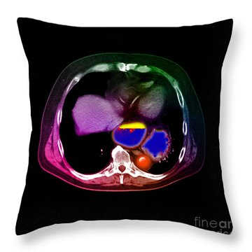 Hiatal Hernia Throw Pillow