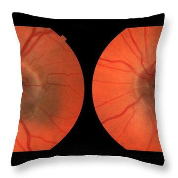 Melanoma Of The Optic Nerve Stereo Image Throw Pillow by Paul Whitten