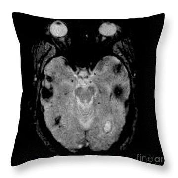 Mri Of Amyloid Angiopathy Throw Pillow by Living Art Enterprises