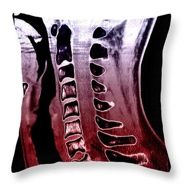 Sickle Cell Osteopathy, Ct Scan Throw Pillow