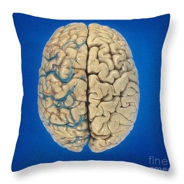 Superior View Of Brain Throw Pillow