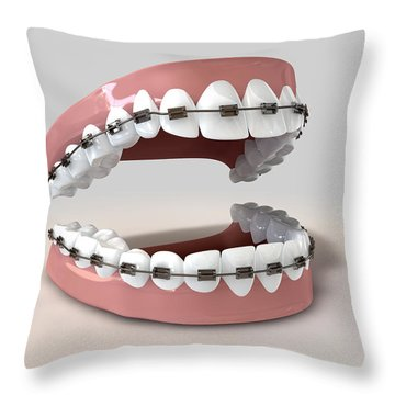 Teeth Fitted With Braces Throw Pillow by Allan Swart