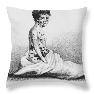 Development Of Smallpox Throw Pillow by Science Source