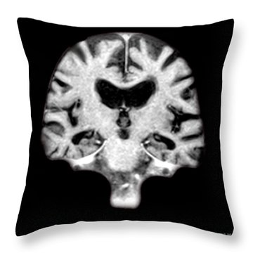 Mri Of Brain With Alzheimers Disease Throw Pillow