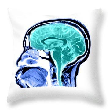 Sagittal View Of An Mri Of The Brain Throw Pillow