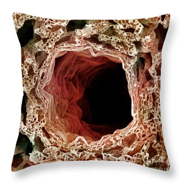 Sem Of Lung Throw Pillow by Science Source