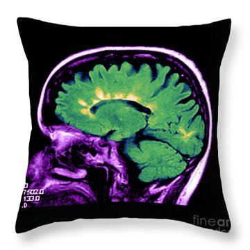 Mri Of Multiple Sclerosis Throw Pillow