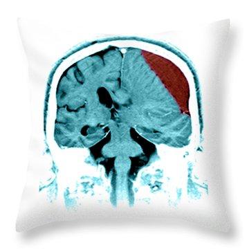 Subdural Hematoma Throw Pillow