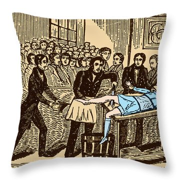 Surgery Without Anesthesia, Pre-1840s Throw Pillow by Science Source