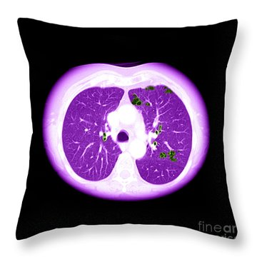 Emphysema On Ct Chest Throw Pillow
