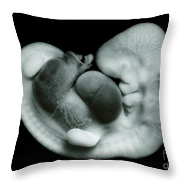 35 Day Old Human Embryo Throw Pillow by Omikron