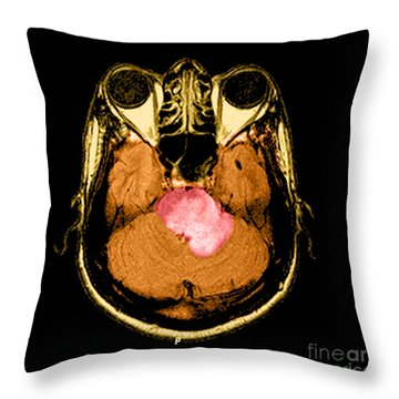 Mri Of Acute Ms Throw Pillow