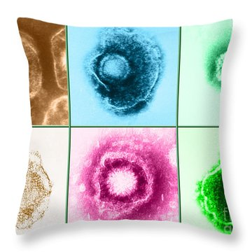 Various Forms Of Herpes Simplex Virus Throw Pillow by Science Source
