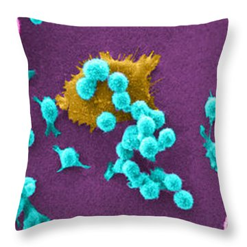 Cancer Cell Death Sequence, Sem Throw Pillow by Science Source