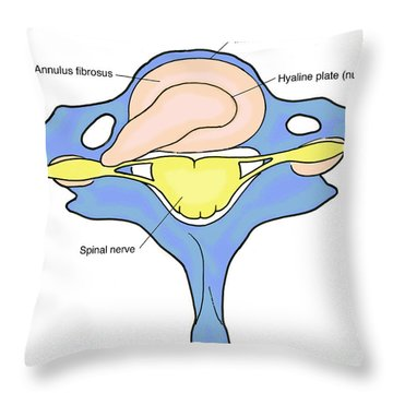 Illustration Of Herniated Spinal Disk Throw Pillow