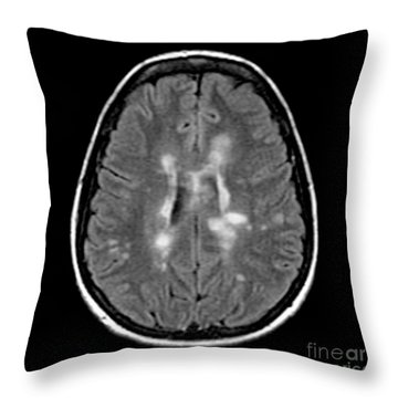 Mri Of Multiple Sclerosis Throw Pillow by Medical Body Scans
