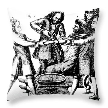 Amputation 1719 Throw Pillow by Science Source