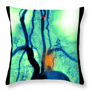 Aortic Arch Throw Pillows