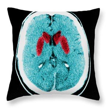 Brain Of A Cardiac Arrest Victim Throw Pillow by Medical Body Scans