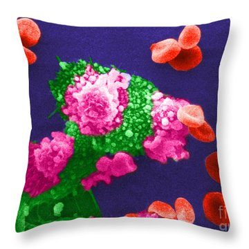 Cancer Cell Death, Sem 3 Of 6 Throw Pillow by Science Source