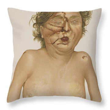 Carbon Monoxide Poisoning Throw Pillow by Science Source