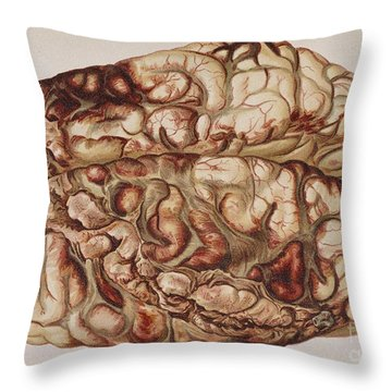 Encircling Gunshot-wound In Brain, 1898 Throw Pillow by Science Source