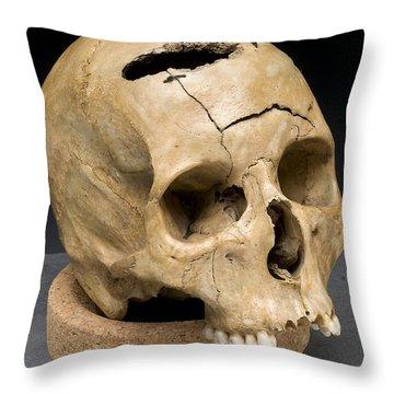 Keyhole Gunshot Trauma, 1860s Throw Pillow by Science Source
