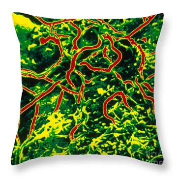 Lyme Disease, Sem Throw Pillow by Science Source