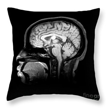 Mri Colloid Cyst Of Third Ventricle Throw Pillow