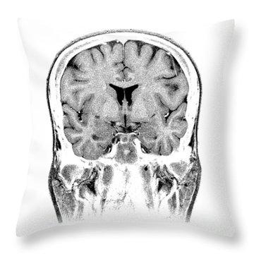 Normal Coronal Mri Of The Brain Throw Pillow