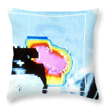 Proton Beam Therapy Throw Pillow by Science Source