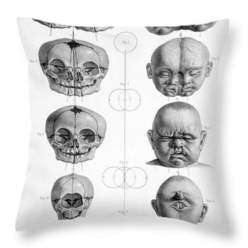 Surgical Anatomy 1856 Throw Pillow by Science Source