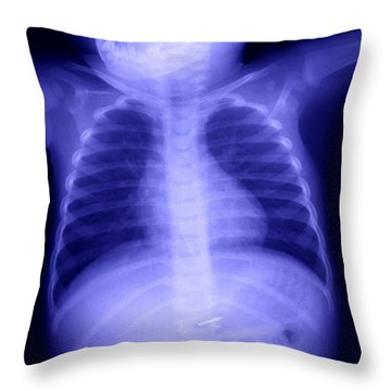 Swallowed Nail Throw Pillow by Ted Kinsman