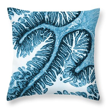 Tem Of Intestines Villi Throw Pillow by Science Source