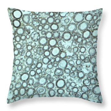 Ts Nerve Trunk Throw Pillow