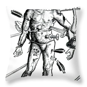 Wound Man 1517 Throw Pillow by Science Source