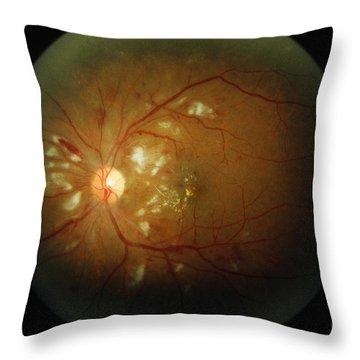 Cmv Retinitis Throw Pillow by Science Source