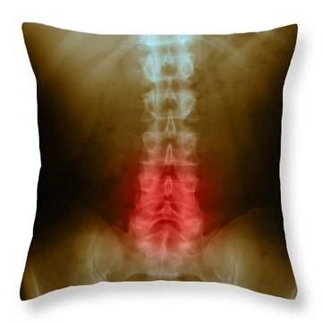 Compression In Lumbar Vertebrae Throw Pillow by Science Source