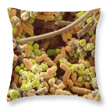 Bacteria In Human Tonsil Pus, Sem Throw Pillow