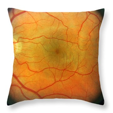 Normal Retina Throw Pillow by Science Source