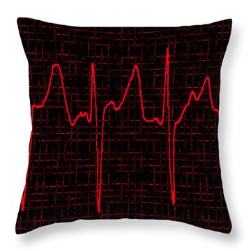 Atrial Fibrillation Throw Pillow by Science Source