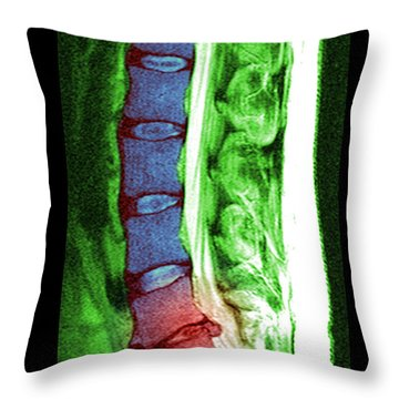Herniated Disc Throw Pillow by Medical Body Scans
