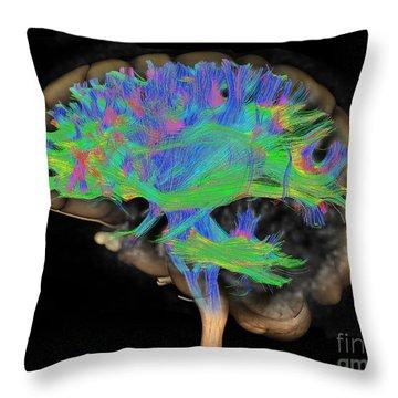 Brain, Fiber Tractography Image Throw Pillow