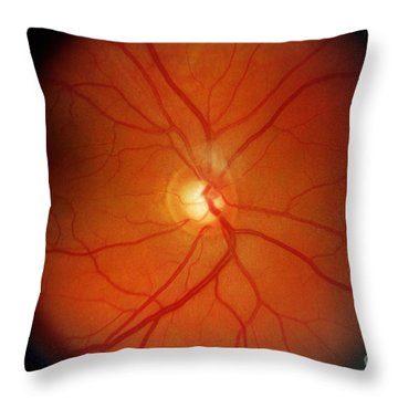 Glaucoma Throw Pillow by Science Source