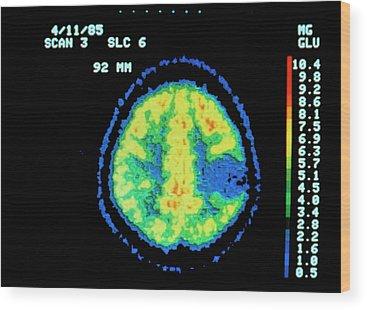 Brain Cancer Wood Prints