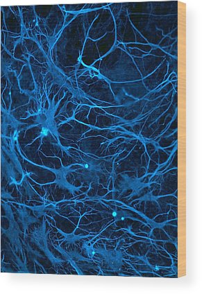 Neurone Wood Prints