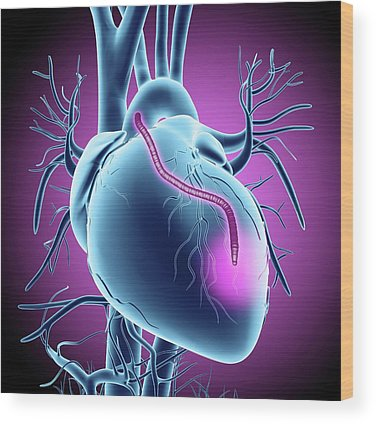 Cardiovascular Disease Wood Prints